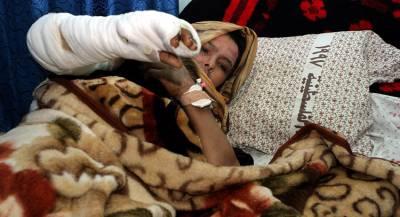 Сирийцы могли заживо сгореть от белого фосфора